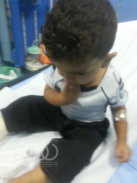 بيش.. تضارب في تشخيص حالة طفل ينتهي بتورم بعد تجبير لمرتين