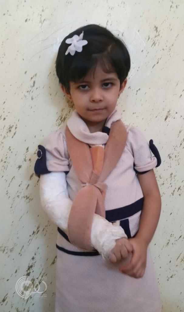 طبيب عظام بمستشفى صامطة يفسد ما أصلحه طبيب الطؤارئ ويجبر كسر يد طفلة بطريقة خاطئة