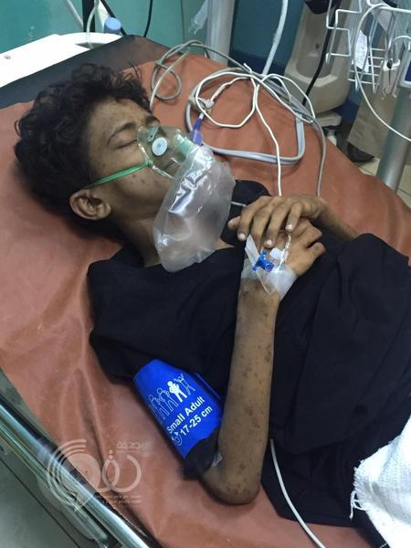 ذوو مريض يشتكون مستشفى فهد بجازان