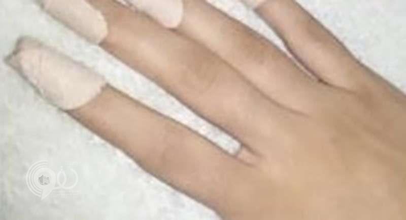 معلمة تقتلع أظافر طالبة في إحدى المدارس بمهد الذهب (صور)