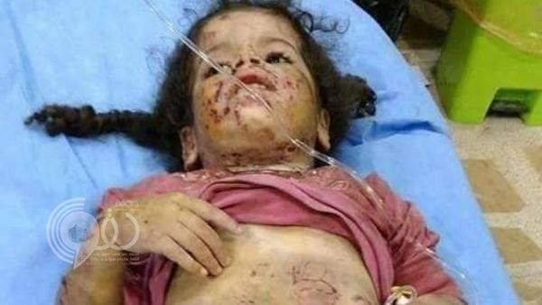 بالصور:عراقي يتحول إلى كلب مسعور وينهش جسد ابنتيه