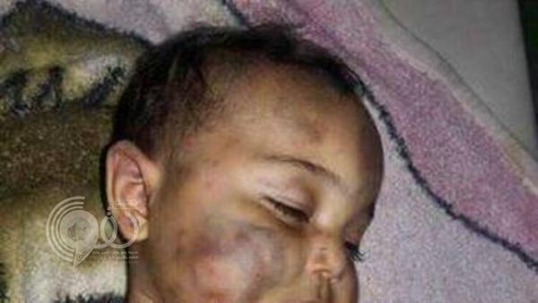 بالصور.. أب يتخلى عن إنسانيته وينهش جسد طفلته الرضيعة حتى الموت