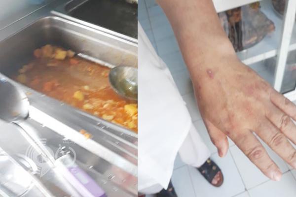 إغلاق مطعم في جازان بسبب طفح جلدي على يد عامل