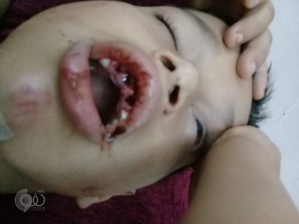 بسبب نتيجة مباراة.. عشريني يعتدي بوحشية على طفل في الدمام (صور)
