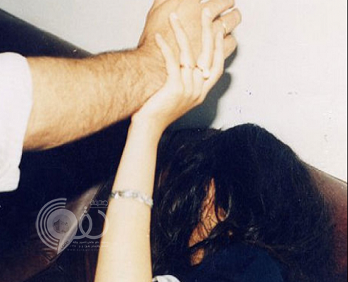 """طبيب مقيم يعتدي على """"سعودية"""" متطوعة في خدمة الحجاج ويكسر أنفها ويكشف حجابها !"""