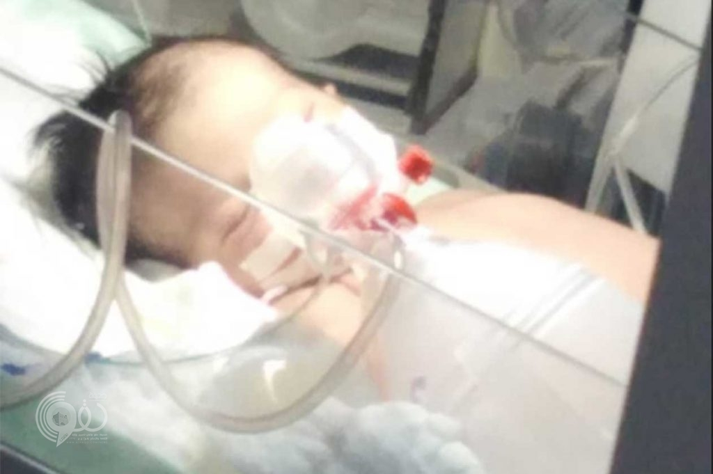 """بعد دخول """"رنا"""" في غيبوبة.. صحة جازان تحيل الواقعة للجنة المخالفات"""