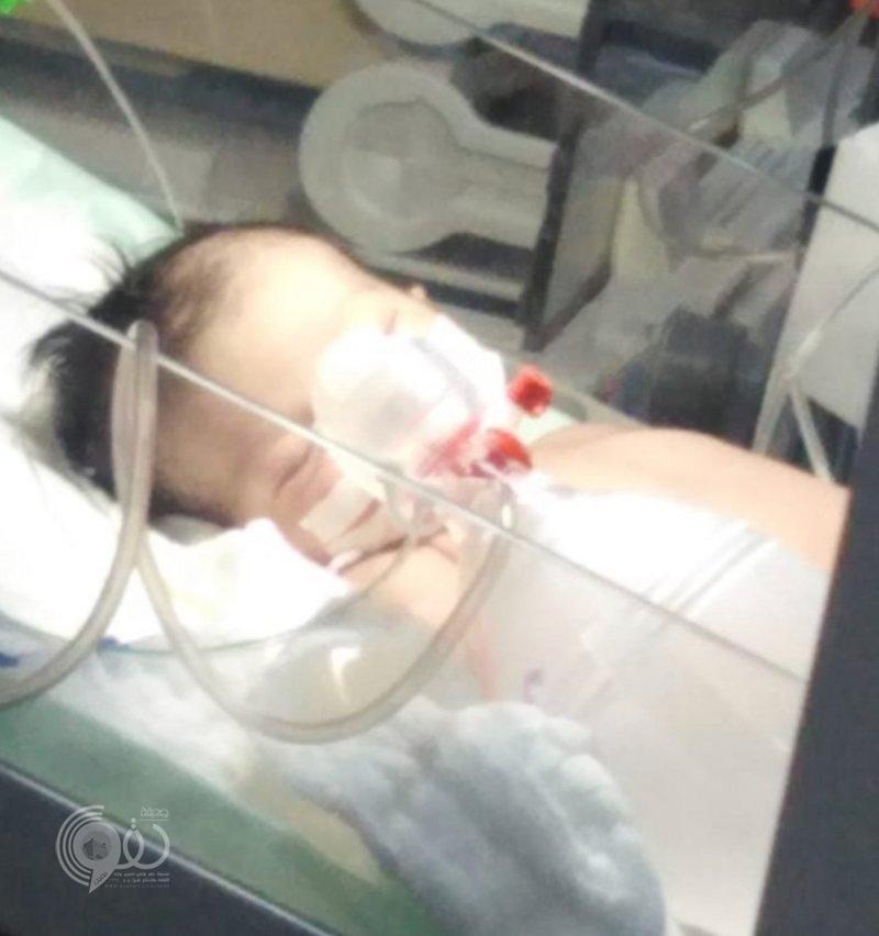 """جازان.. طفلة """"العارضة"""" لاتزال في الغيبوبة ووالدها رفض الوساطات: أنتظر العرض على المحكمة الطبية"""