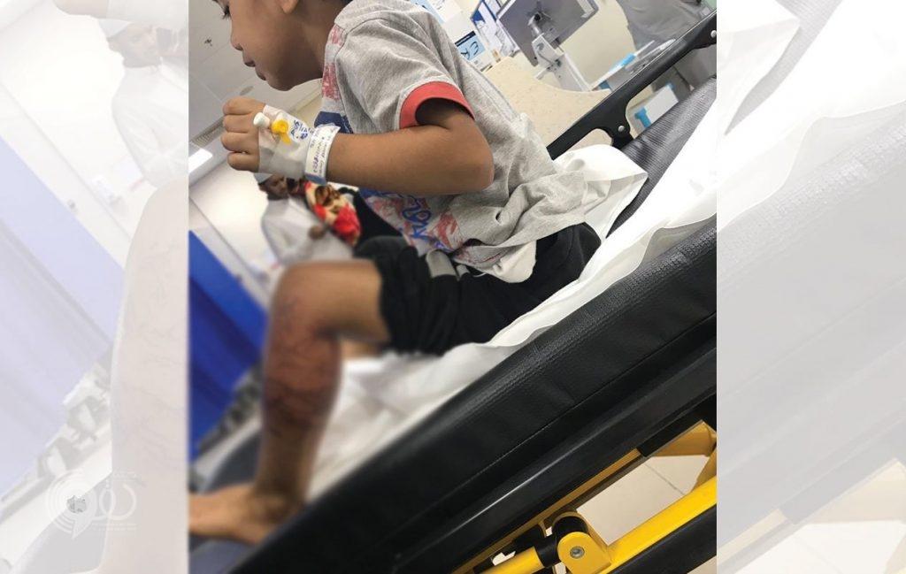 واقعة الطفل الملسوع في جازان تتفاعل.. الأب يتهم المستشفى والصحة تحمله المسؤولية