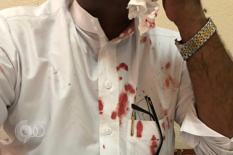 مواطن يعتدي على وكيل مدرسة بالطائف ويطعنه في وجهه.. صور