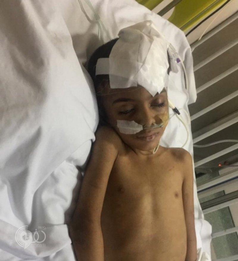 مواطن ينشر صور بشعة لأثار التعذيب على جسد طفله بخميس مشيط .. ويكشف عن هوية الجاني