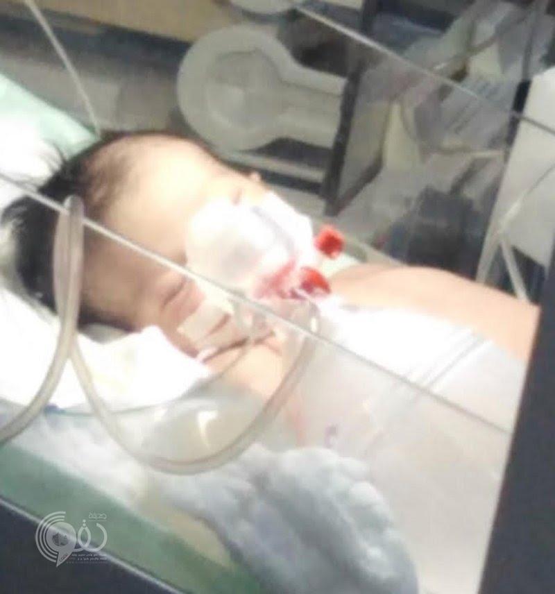 """بعد شهرين.. طفلة """"العارضة"""" تودع الحياة وأسرتها تطالب """"الصحة"""" بتحريك القضية"""
