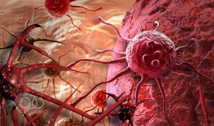 16 ألف مصاب بالمملكة.. استشاري يوضح أكثر أنواع السرطان انتشاراً وأشهر أسباب الإصابة به