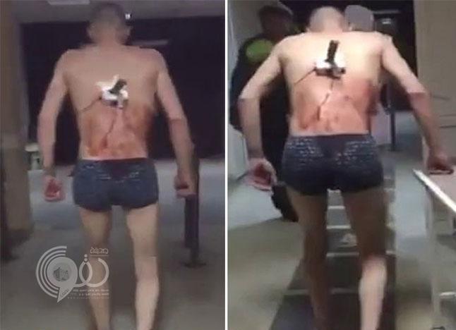 شاهد: شاب روسي يخرج من المستشفى بسكين في ظهره من أجل تدخين سيجارة !