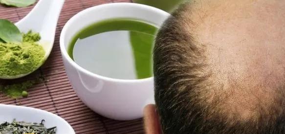 """مشروب """"سحري"""" للقضاء على الصلع وزيادة نمو الشعر"""