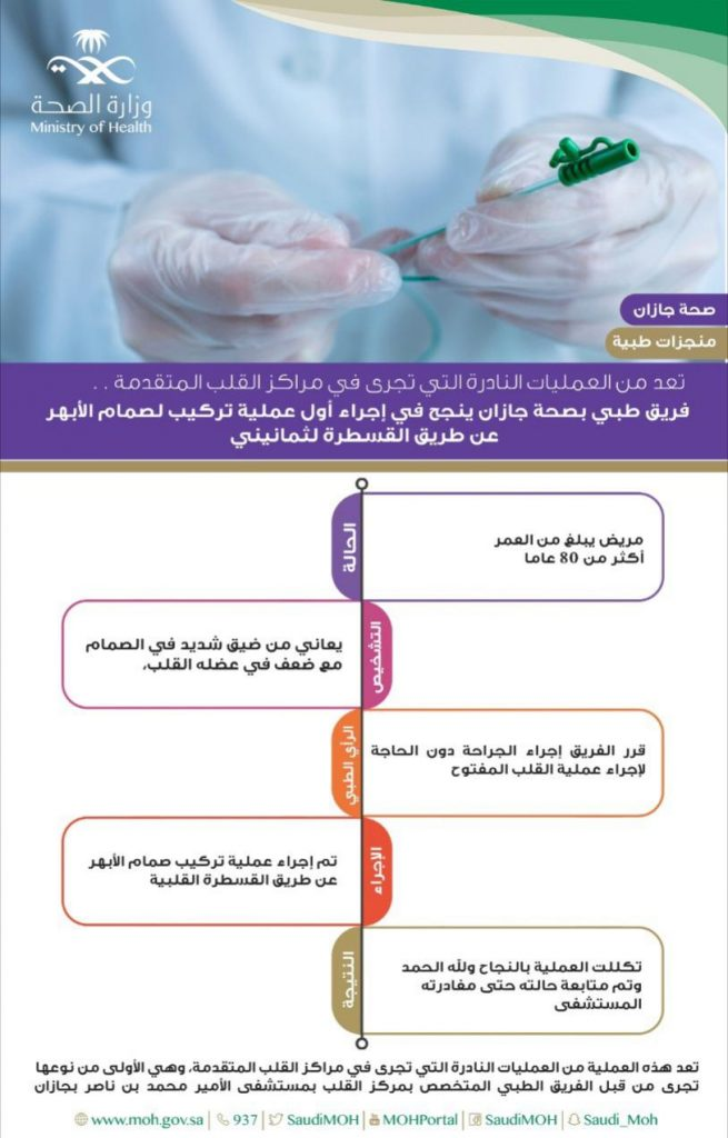 الأولى من نوعها.. مستشفى بجازان ينجح في تركيب صمام الأبهر دون عملية قلب مفتوح